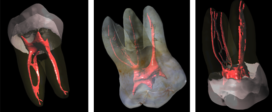 anatomical complexity challenges in root canal therapy