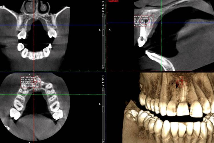 3D Imaging: CBCT