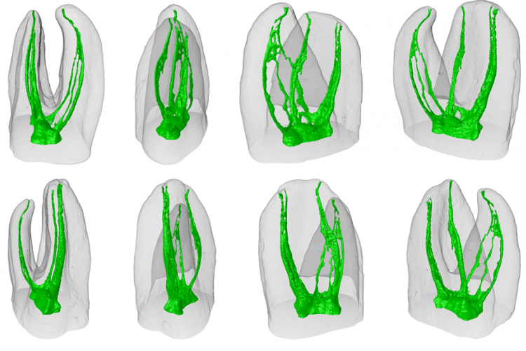 Anatomical Complexity: Challenges In Root Canal Therapy
