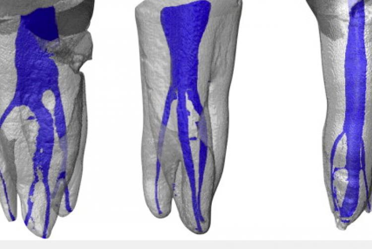 3D Imaging: Complexity of Canals