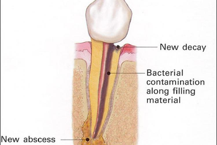 Endodontic Retreatment Therapy