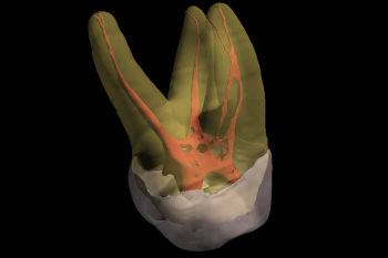 3D Imaging : Complexity of Canals